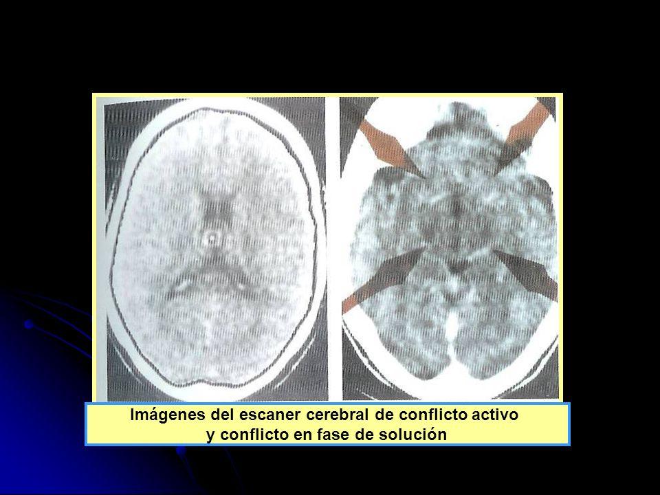Imágenes del escaner cerebral de conflicto activo y conflicto en fase de solución