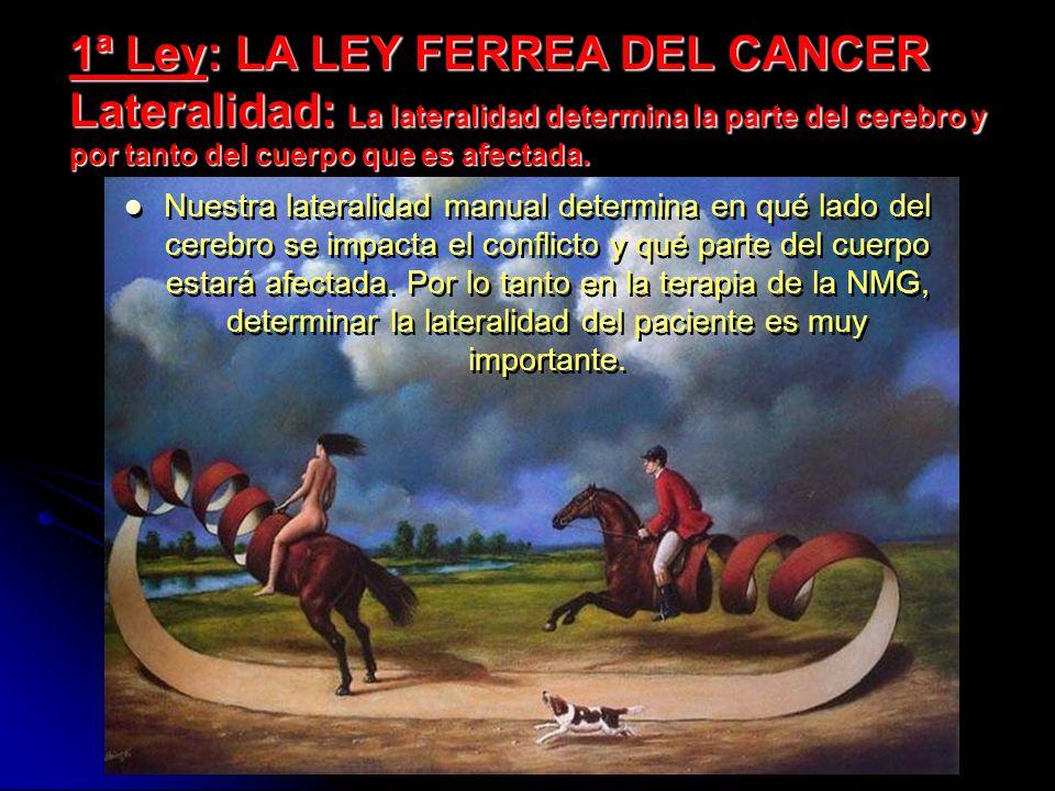 1ª Ley: LA LEY FERREA DEL CANCER Lateralidad: La lateralidad determina la parte del cerebro y por tanto del cuerpo que es afectada. Nuestra lateralida