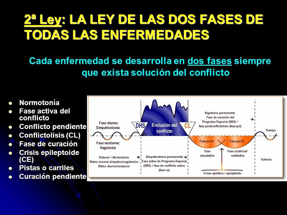 2ª Ley: LA LEY DE LAS DOS FASES DE TODAS LAS ENFERMEDADES Normotonía Fase activa del conflicto Conflicto pendiente Conflictolisis (CL) Fase de curació