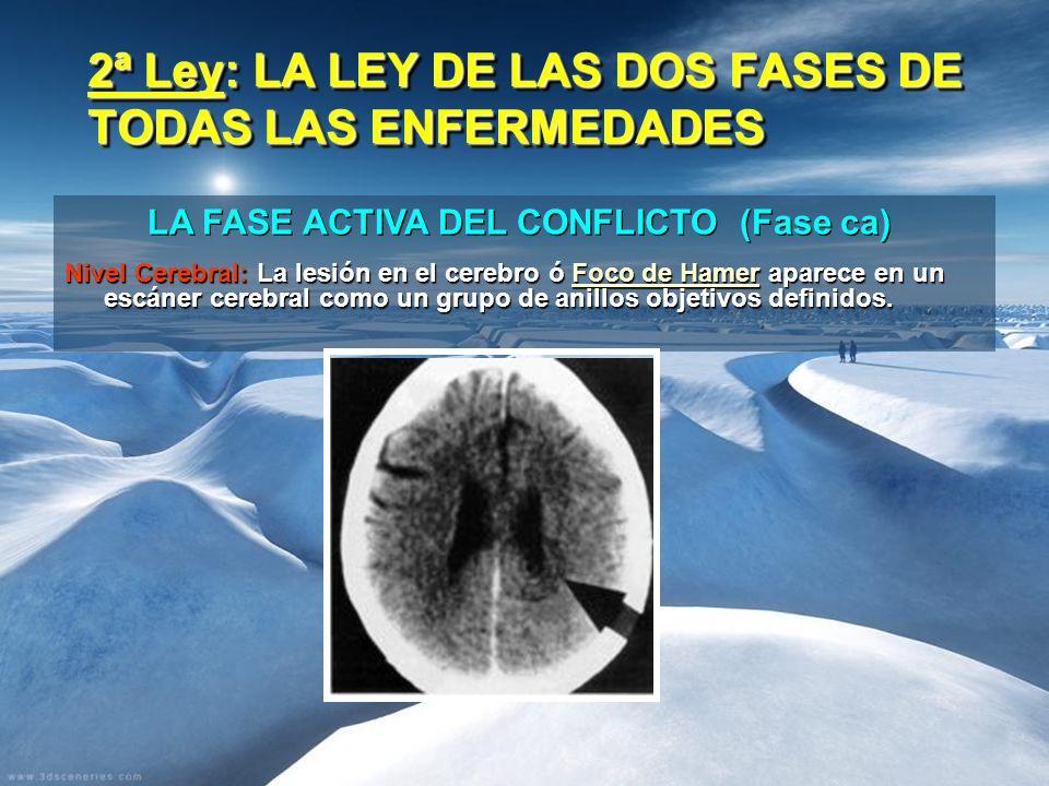 2ª Ley: LA LEY DE LAS DOS FASES DE TODAS LAS ENFERMEDADES Nivel Cerebral: La lesión en el cerebro ó Foco de Hamer aparece en un escáner cerebral como un grupo de anillos objetivos definidos.