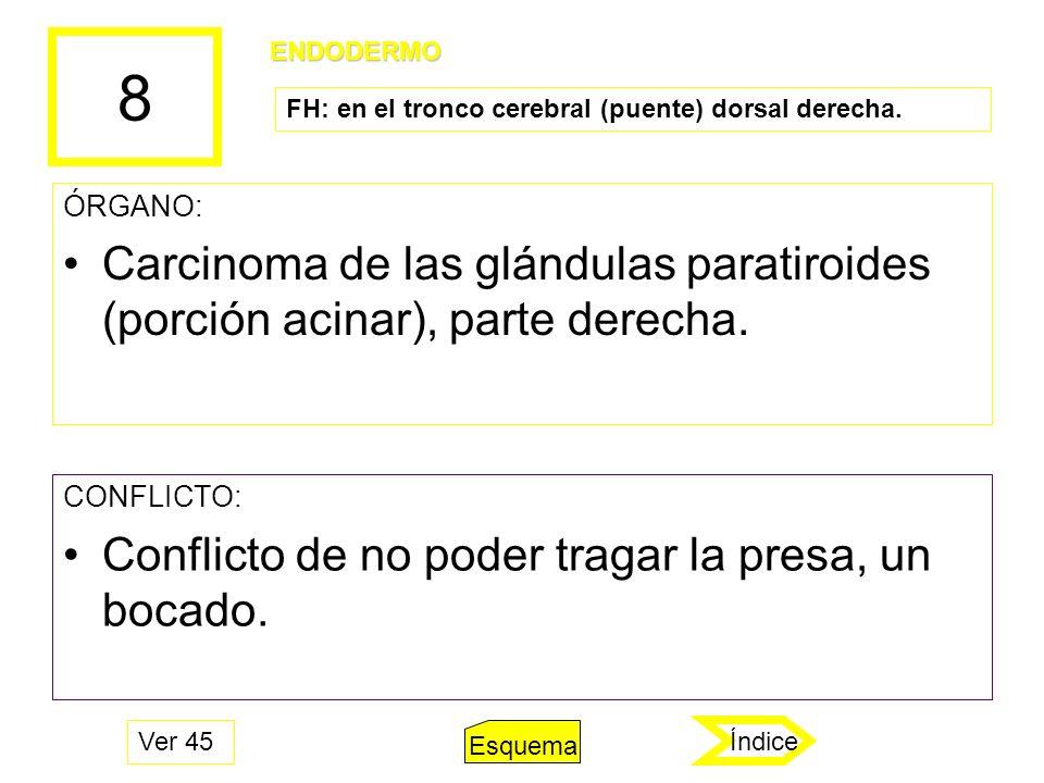 8 ÓRGANO: Carcinoma de las glándulas paratiroides (porción acinar), parte derecha. CONFLICTO: Conflicto de no poder tragar la presa, un bocado. ENDODE
