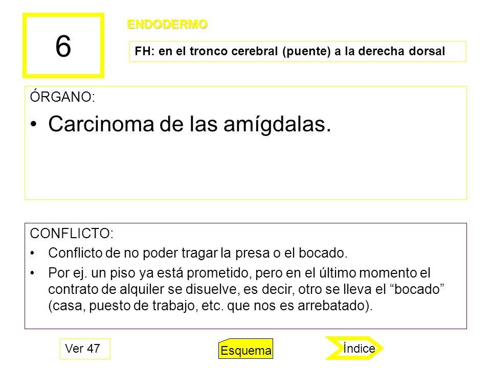 6 ÓRGANO: Carcinoma de las amígdalas. CONFLICTO: Conflicto de no poder tragar la presa o el bocado. Por ej. un piso ya está prometido, pero en el últi