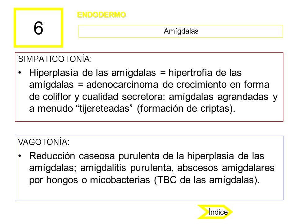 6 SIMPATICOTONÍA: Hiperplasía de las amígdalas = hipertrofia de las amígdalas = adenocarcinoma de crecimiento en forma de coliflor y cualidad secretor