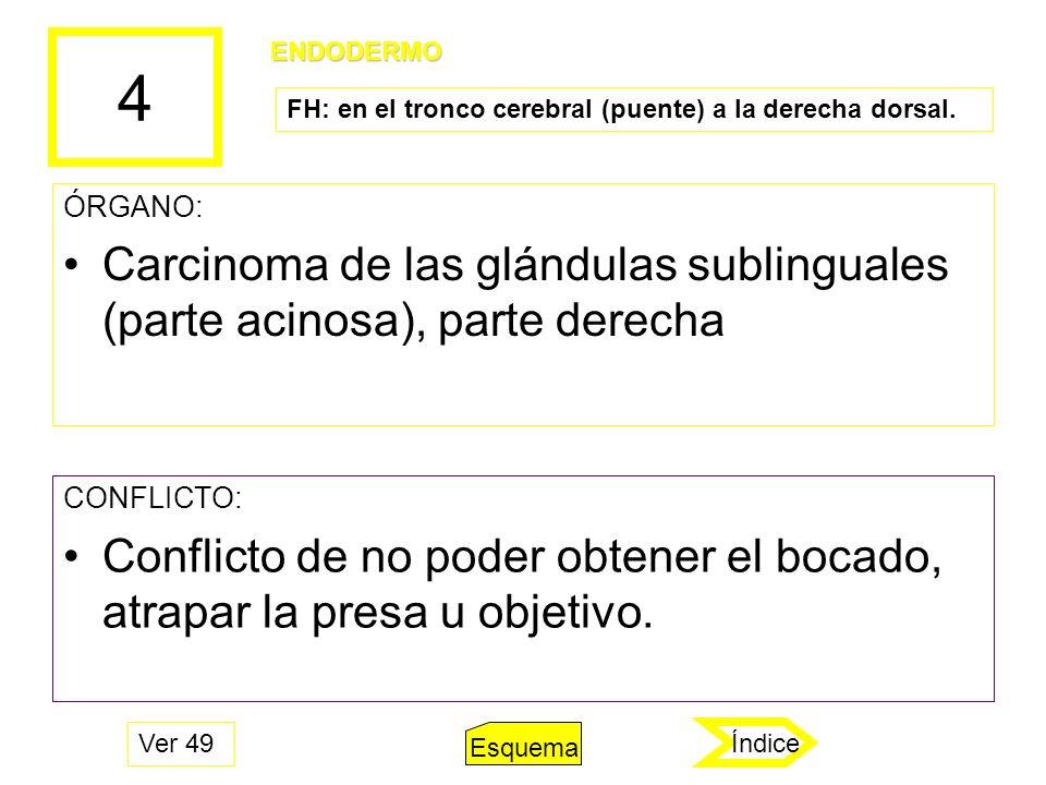 4 ÓRGANO: Carcinoma de las glándulas sublinguales (parte acinosa), parte derecha CONFLICTO: Conflicto de no poder obtener el bocado, atrapar la presa