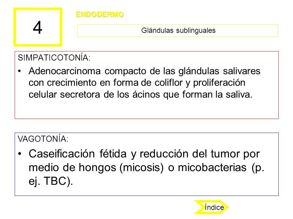 4 SIMPATICOTONÍA: Adenocarcinoma compacto de las glándulas salivares con crecimiento en forma de coliflor y proliferación celular secretora de los áci