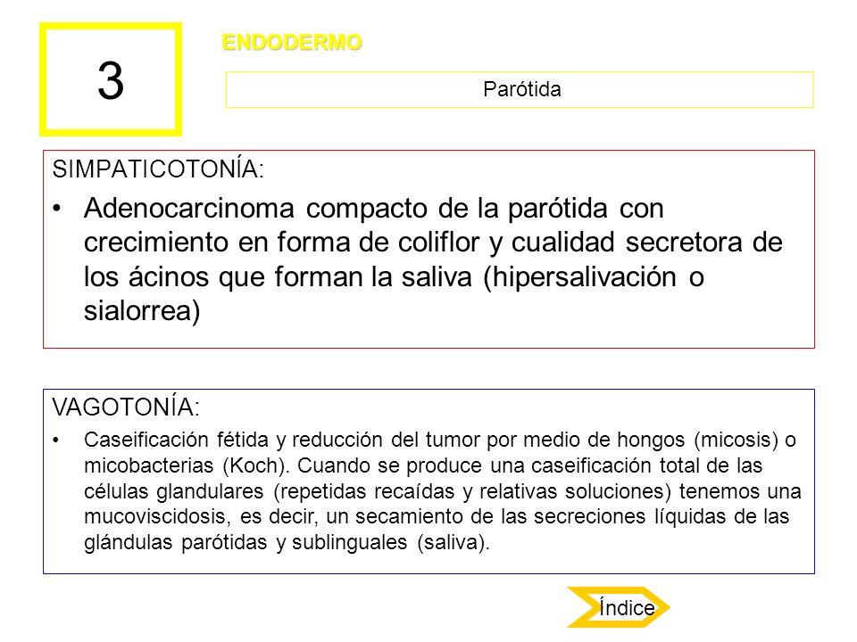 3 SIMPATICOTONÍA: Adenocarcinoma compacto de la parótida con crecimiento en forma de coliflor y cualidad secretora de los ácinos que forman la saliva