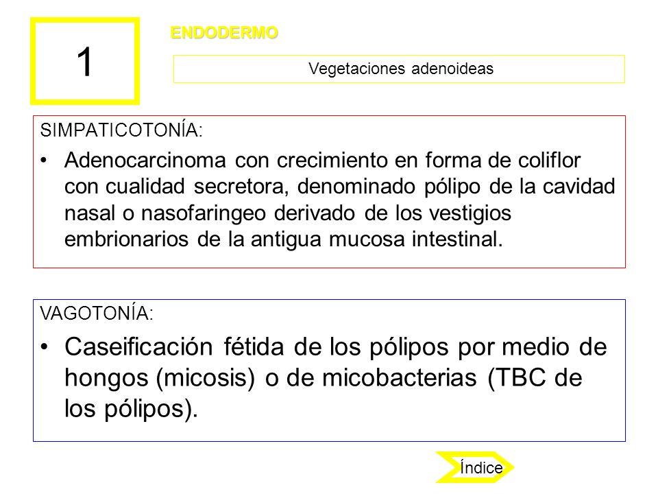 1 SIMPATICOTONÍA: Adenocarcinoma con crecimiento en forma de coliflor con cualidad secretora, denominado pólipo de la cavidad nasal o nasofaringeo der