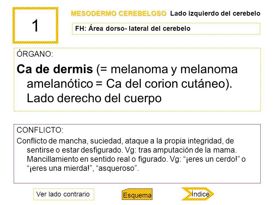 1 ÓRGANO: Ca de dermis (= melanoma y melanoma amelanótico = Ca del corion cutáneo). Lado derecho del cuerpo CONFLICTO: Conflicto de mancha, suciedad,