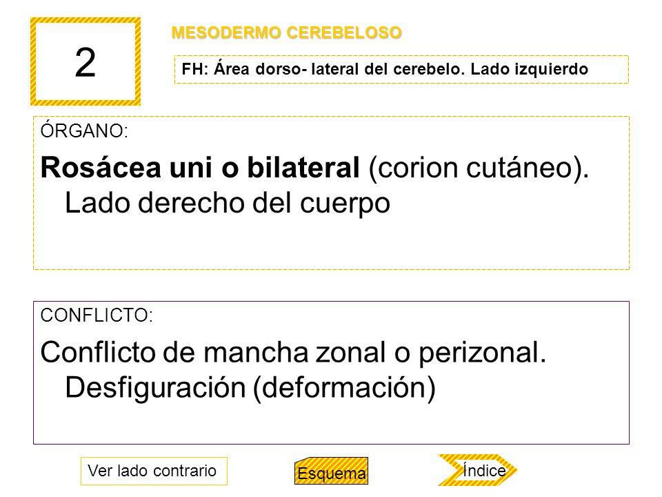 2 ÓRGANO: Rosácea uni o bilateral (corion cutáneo). Lado derecho del cuerpo CONFLICTO: Conflicto de mancha zonal o perizonal. Desfiguración (deformaci