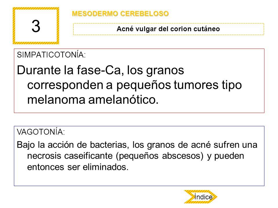 3 SIMPATICOTONÍA: Durante la fase-Ca, los granos corresponden a pequeños tumores tipo melanoma amelanótico. VAGOTONÍA: Bajo la acción de bacterias, lo