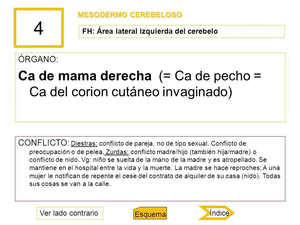 4 ÓRGANO: Ca de mama derecha (= Ca de pecho = Ca del corion cutáneo invaginado) CONFLICTO: Diestras: conflicto de pareja, no de tipo sexual. Conflicto