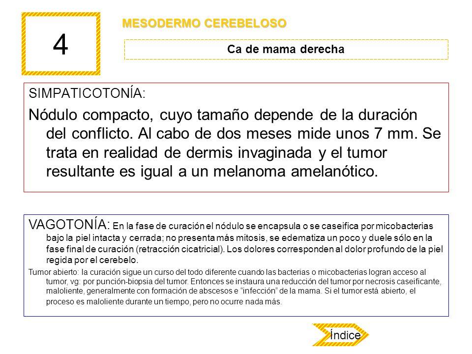 4 SIMPATICOTONÍA: Nódulo compacto, cuyo tamaño depende de la duración del conflicto. Al cabo de dos meses mide unos 7 mm. Se trata en realidad de derm