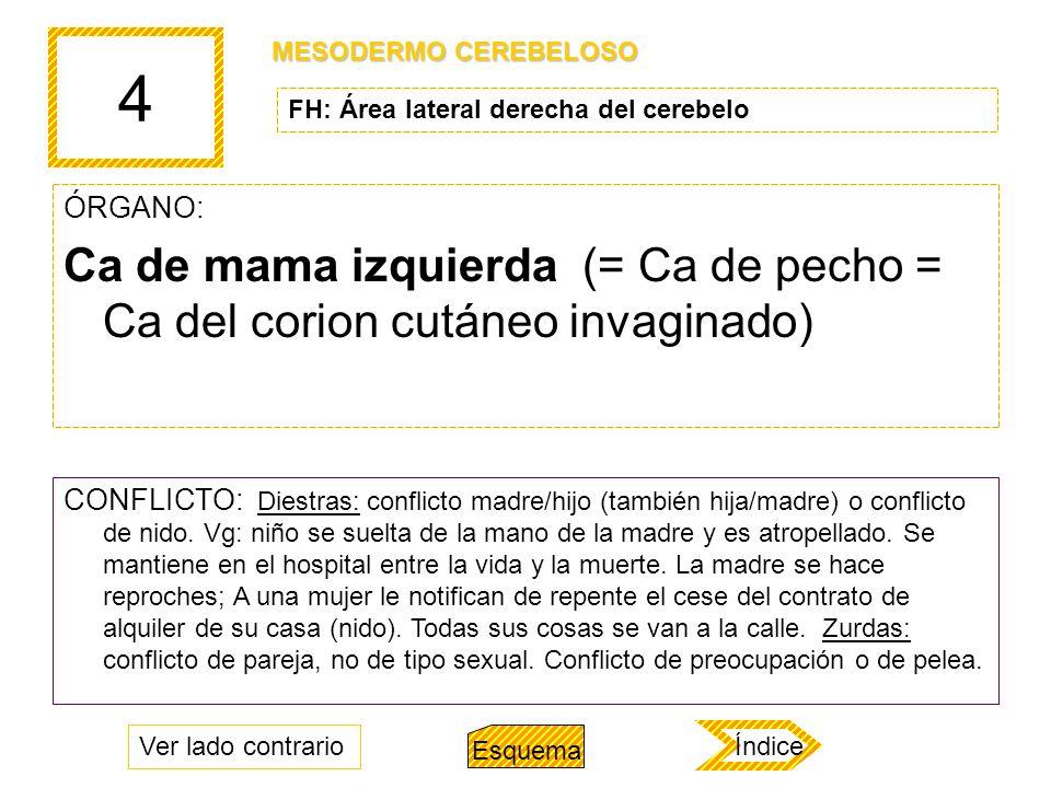4 ÓRGANO: Ca de mama izquierda (= Ca de pecho = Ca del corion cutáneo invaginado) CONFLICTO: Diestras: conflicto madre/hijo (también hija/madre) o con