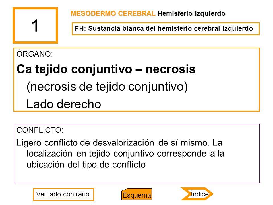 1 ÓRGANO: Ca tejido conjuntivo – necrosis (necrosis de tejido conjuntivo) Lado derecho CONFLICTO: Ligero conflicto de desvalorización de sí mismo. La