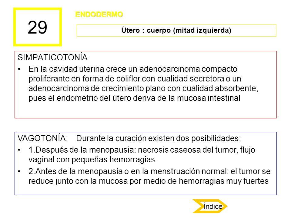29 SIMPATICOTONÍA: En la cavidad uterina crece un adenocarcinoma compacto proliferante en forma de coliflor con cualidad secretora o un adenocarcinoma