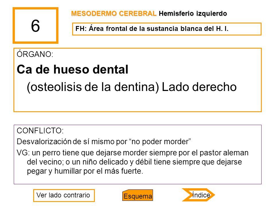 6 ÓRGANO: Ca de hueso dental (osteolisis de la dentina) Lado derecho CONFLICTO: Desvalorización de sí mismo por no poder morder VG: un perro tiene que