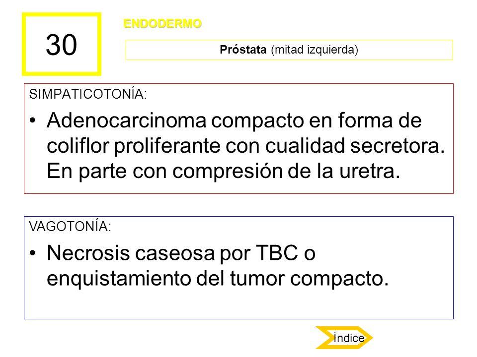 30 SIMPATICOTONÍA: Adenocarcinoma compacto en forma de coliflor proliferante con cualidad secretora. En parte con compresión de la uretra. VAGOTONÍA: