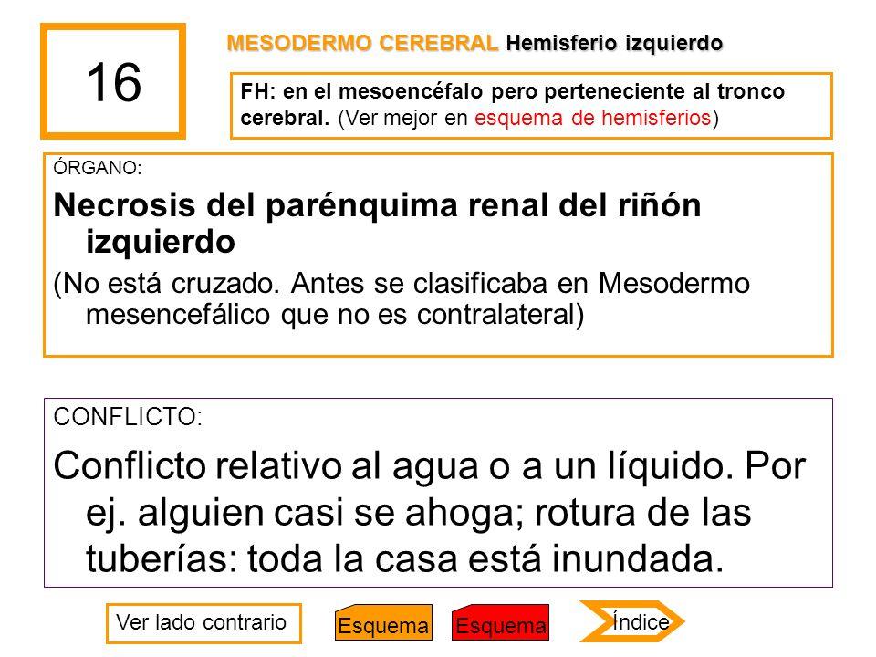 16 ÓRGANO: Necrosis del parénquima renal del riñón izquierdo (No está cruzado. Antes se clasificaba en Mesodermo mesencefálico que no es contralateral