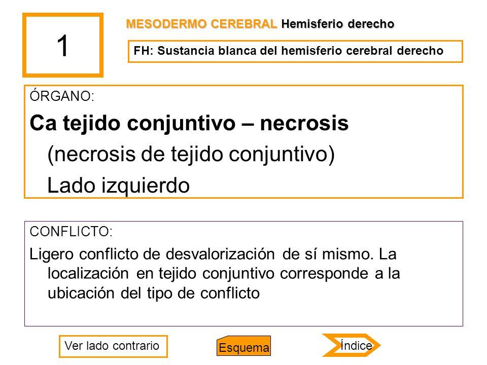 1 ÓRGANO: Ca tejido conjuntivo – necrosis (necrosis de tejido conjuntivo) Lado izquierdo CONFLICTO: Ligero conflicto de desvalorización de sí mismo. L