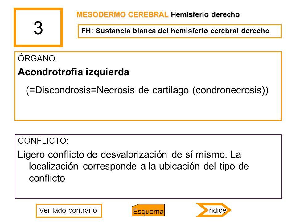 3 ÓRGANO: Acondrotrofia izquierda (=Discondrosis=Necrosis de cartilago (condronecrosis)) CONFLICTO: Ligero conflicto de desvalorización de sí mismo. L