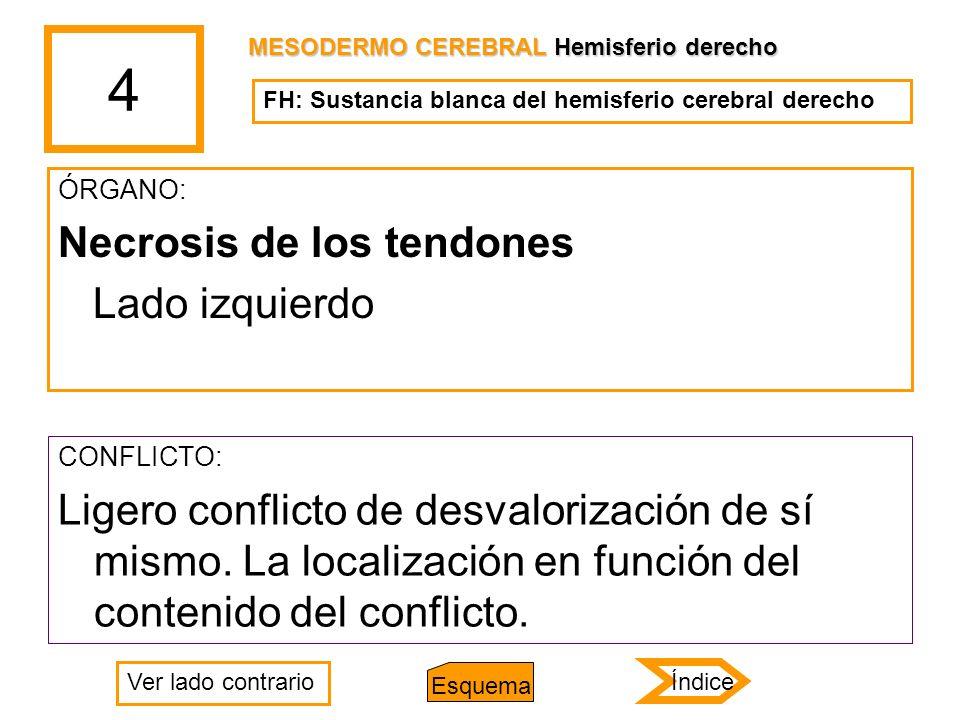 4 ÓRGANO: Necrosis de los tendones Lado izquierdo CONFLICTO: Ligero conflicto de desvalorización de sí mismo. La localización en función del contenido