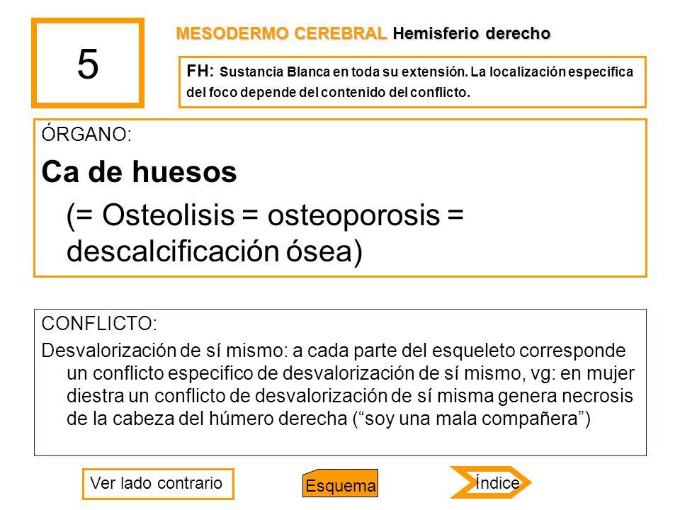 5 ÓRGANO: Ca de huesos (= Osteolisis = osteoporosis = descalcificación ósea) CONFLICTO: Desvalorización de sí mismo: a cada parte del esqueleto corres