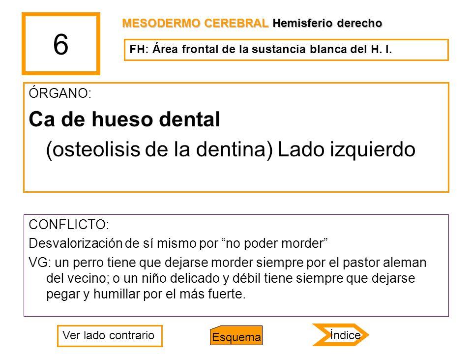 6 ÓRGANO: Ca de hueso dental (osteolisis de la dentina) Lado izquierdo CONFLICTO: Desvalorización de sí mismo por no poder morder VG: un perro tiene q