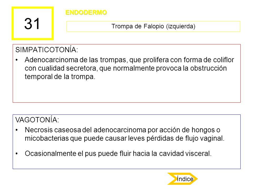 31 SIMPATICOTONÍA: Adenocarcinoma de las trompas, que prolifera con forma de coliflor con cualidad secretora, que normalmente provoca la obstrucción t