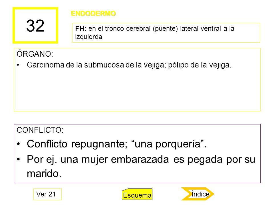 32 ÓRGANO: Carcinoma de la submucosa de la vejiga; pólipo de la vejiga. CONFLICTO: Conflicto repugnante; una porquería. Por ej. una mujer embarazada e