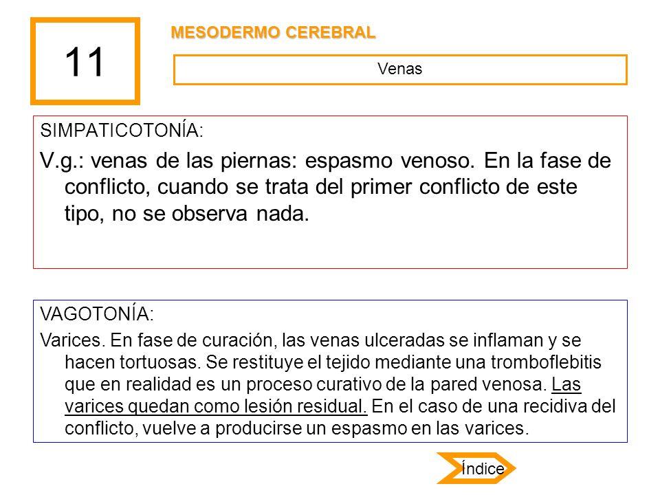 11 SIMPATICOTONÍA: V.g.: venas de las piernas: espasmo venoso. En la fase de conflicto, cuando se trata del primer conflicto de este tipo, no se obser