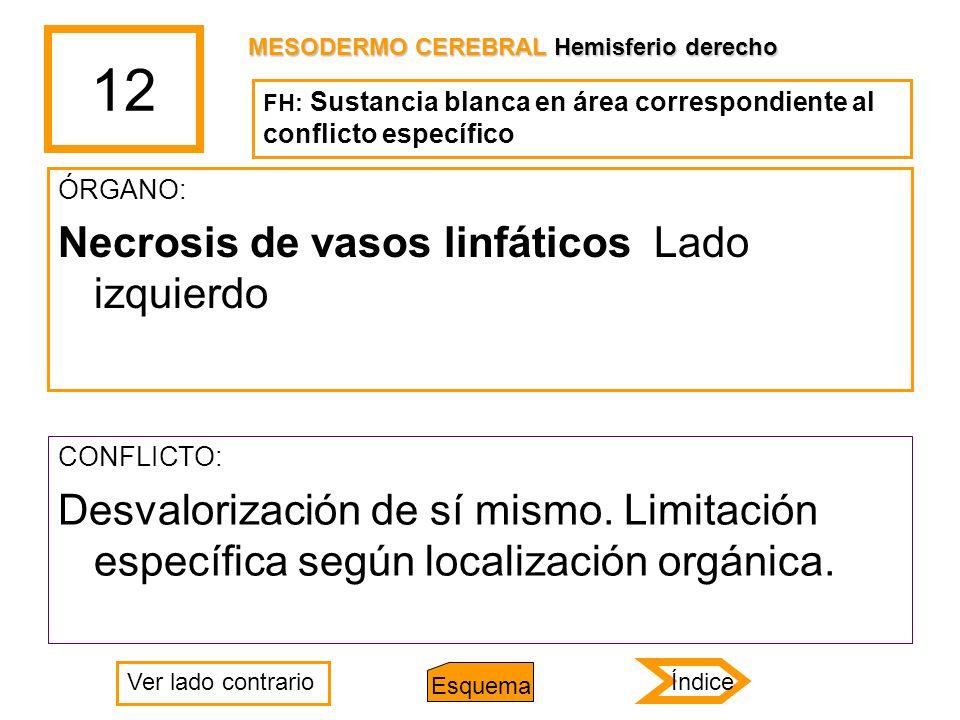 12 ÓRGANO: Necrosis de vasos linfáticos Lado izquierdo CONFLICTO: Desvalorización de sí mismo. Limitación específica según localización orgánica. MESO