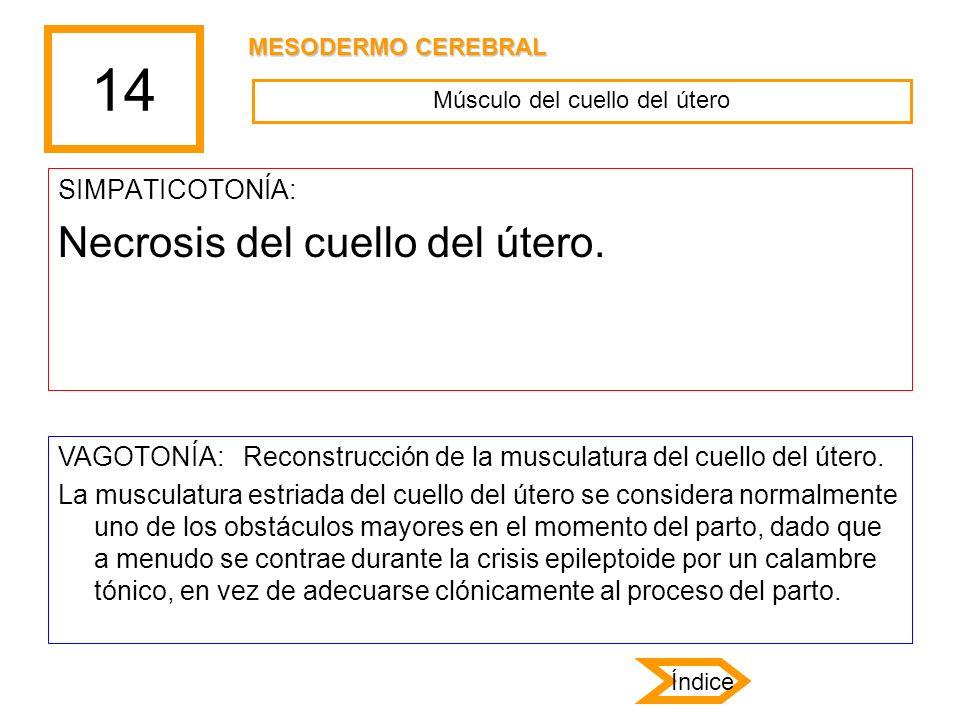 14 SIMPATICOTONÍA: Necrosis del cuello del útero. VAGOTONÍA: Reconstrucción de la musculatura del cuello del útero. La musculatura estriada del cuello
