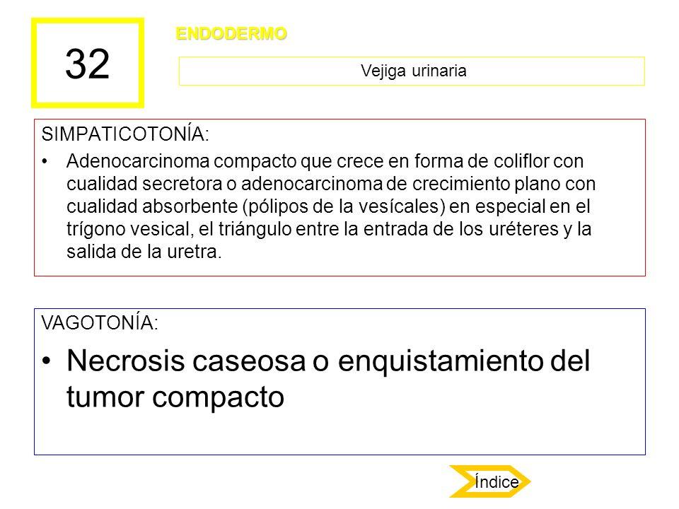 32 SIMPATICOTONÍA: Adenocarcinoma compacto que crece en forma de coliflor con cualidad secretora o adenocarcinoma de crecimiento plano con cualidad ab