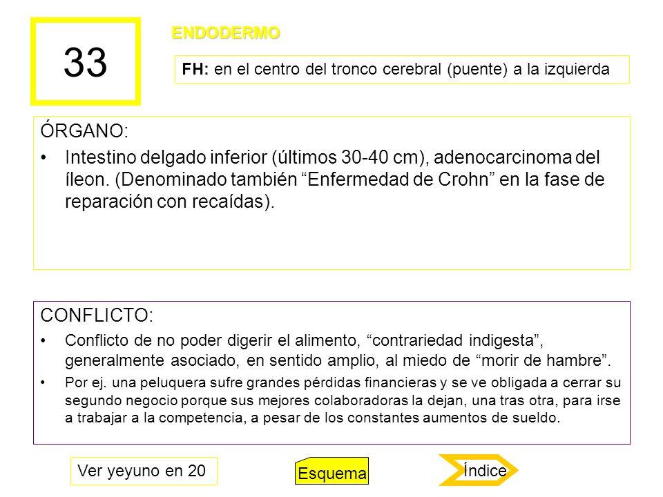 33 ÓRGANO: Intestino delgado inferior (últimos 30-40 cm), adenocarcinoma del íleon. (Denominado también Enfermedad de Crohn en la fase de reparación c