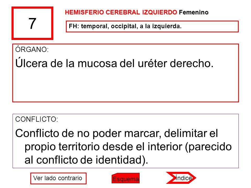 7 ÓRGANO: Úlcera de la mucosa del uréter derecho. CONFLICTO: Conflicto de no poder marcar, delimitar el propio territorio desde el interior (parecido