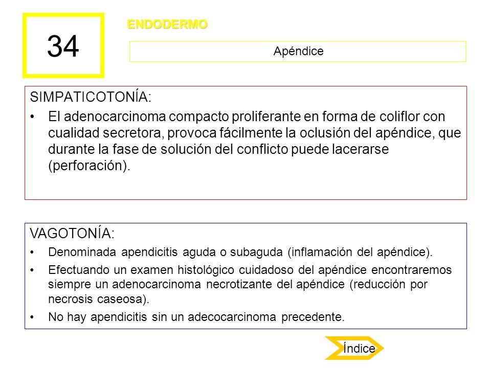 34 SIMPATICOTONÍA: El adenocarcinoma compacto proliferante en forma de coliflor con cualidad secretora, provoca fácilmente la oclusión del apéndice, q