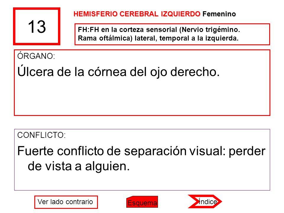 13 ÓRGANO: Úlcera de la córnea del ojo derecho. CONFLICTO: Fuerte conflicto de separación visual: perder de vista a alguien. FH:FH en la corteza senso