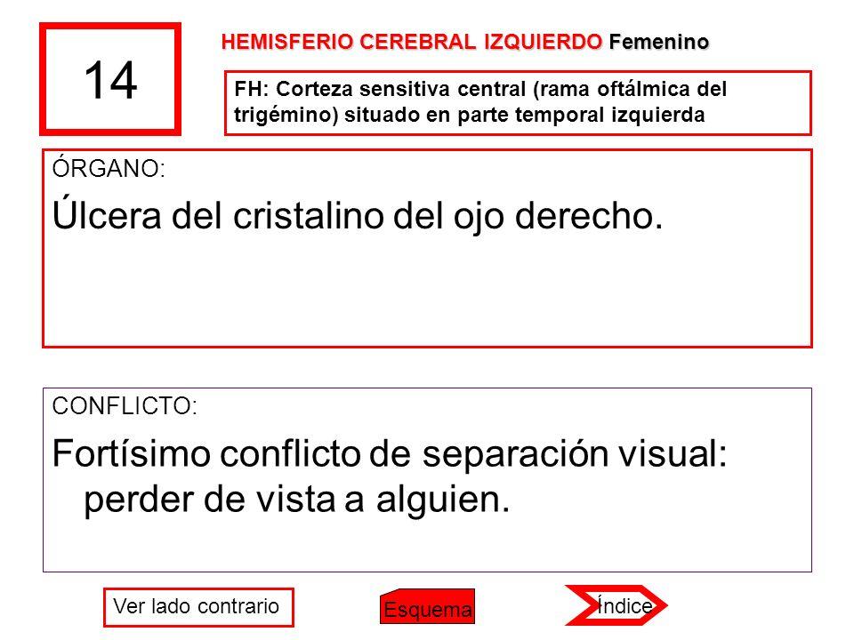 14 ÓRGANO: Úlcera del cristalino del ojo derecho. CONFLICTO: Fortísimo conflicto de separación visual: perder de vista a alguien. FH: Corteza sensitiv