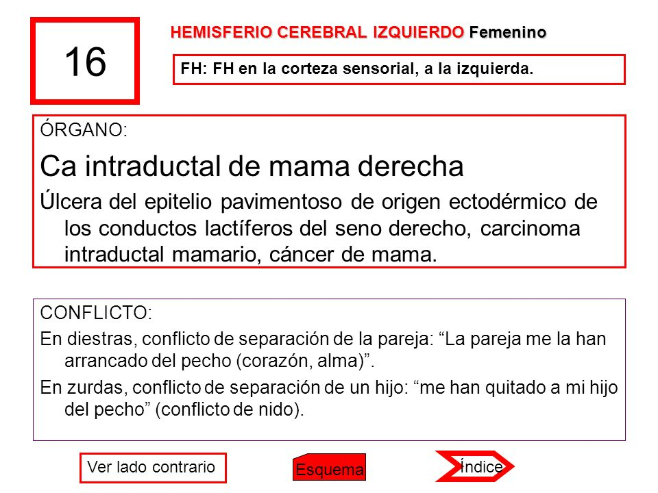 16 ÓRGANO: Ca intraductal de mama derecha Úlcera del epitelio pavimentoso de origen ectodérmico de los conductos lactíferos del seno derecho, carcinom
