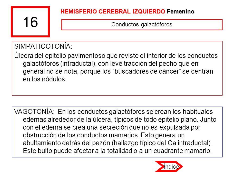16 SIMPATICOTONÍA: Úlcera del epitelio pavimentoso que reviste el interior de los conductos galactóforos (intraductal), con leve tracción del pecho qu
