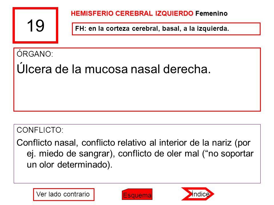 19 ÓRGANO: Úlcera de la mucosa nasal derecha. CONFLICTO: Conflicto nasal, conflicto relativo al interior de la nariz (por ej. miedo de sangrar), confl