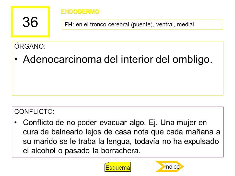 36 ÓRGANO: Adenocarcinoma del interior del ombligo. CONFLICTO: Conflicto de no poder evacuar algo. Ej. Una mujer en cura de balneario lejos de casa no