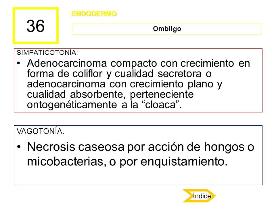 36 SIMPATICOTONÍA: Adenocarcinoma compacto con crecimiento en forma de coliflor y cualidad secretora o adenocarcinoma con crecimiento plano y cualidad