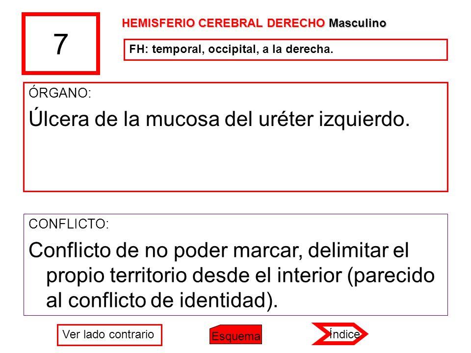 7 ÓRGANO: Úlcera de la mucosa del uréter izquierdo. CONFLICTO: Conflicto de no poder marcar, delimitar el propio territorio desde el interior (parecid