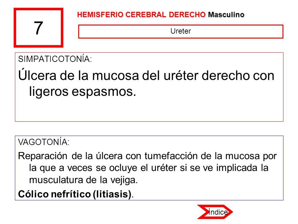 7 SIMPATICOTONÍA: Úlcera de la mucosa del uréter derecho con ligeros espasmos. VAGOTONÍA: Reparación de la úlcera con tumefacción de la mucosa por la