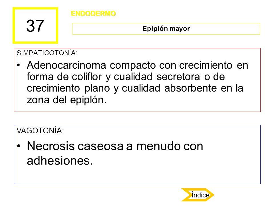37 SIMPATICOTONÍA: Adenocarcinoma compacto con crecimiento en forma de coliflor y cualidad secretora o de crecimiento plano y cualidad absorbente en l