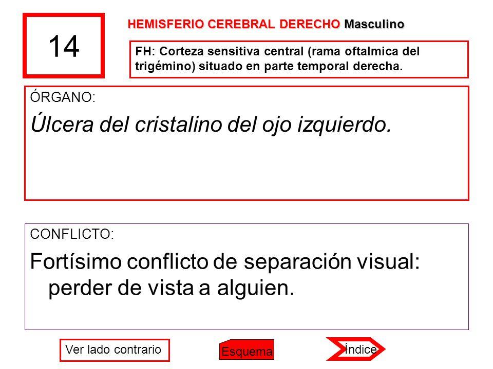 14 ÓRGANO: Úlcera del cristalino del ojo izquierdo. CONFLICTO: Fortísimo conflicto de separación visual: perder de vista a alguien. HEMISFERIO CEREBRA