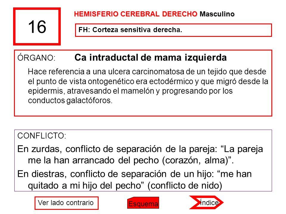 16 ÓRGANO: Ca intraductal de mama izquierda Hace referencia a una ulcera carcinomatosa de un tejido que desde el punto de vista ontogenético era ectod