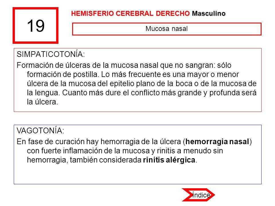 19 SIMPATICOTONÍA: Formación de úlceras de la mucosa nasal que no sangran: sólo formación de postilla. Lo más frecuente es una mayor o menor úlcera de