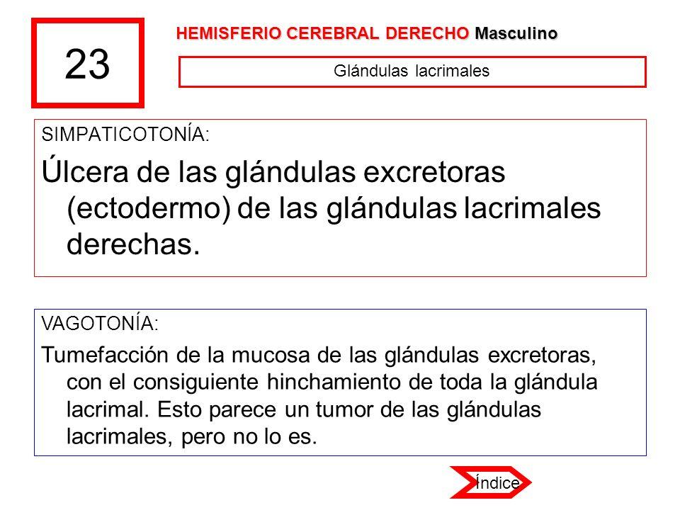 23 SIMPATICOTONÍA: Úlcera de las glándulas excretoras (ectodermo) de las glándulas lacrimales derechas. VAGOTONÍA: Tumefacción de la mucosa de las glá